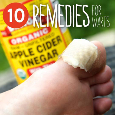 10 Home Remedies For Warts